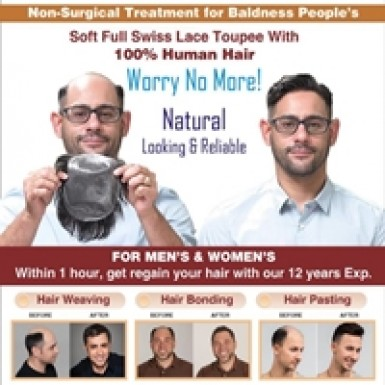Hair Patch Services